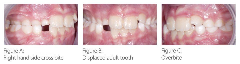 3671RFD-Myobrace-Website-Content--Before-myobrace-teeth--30x8---v01b
