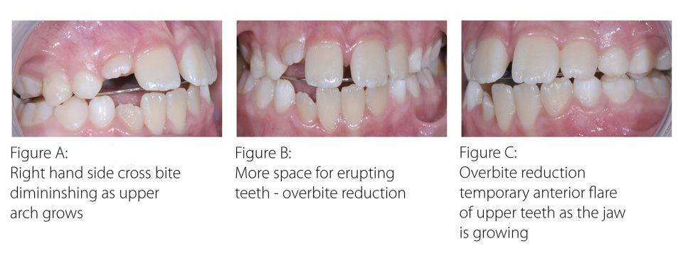 3671RFD-Myobrace-Website-Content-teeth-30x12-v01a