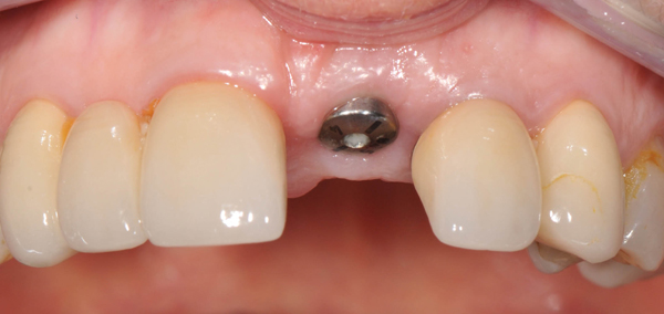 dental-implants-melbourne-implant-fixture