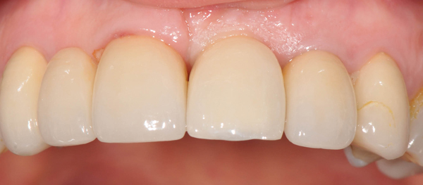 dental-implants-melbourne-richmond-fine-dentistry-completed