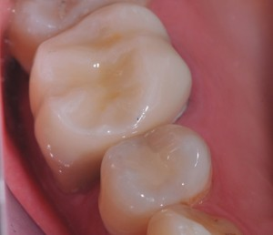 general-dentistry-restorative-tooth-coloured-fillings-after