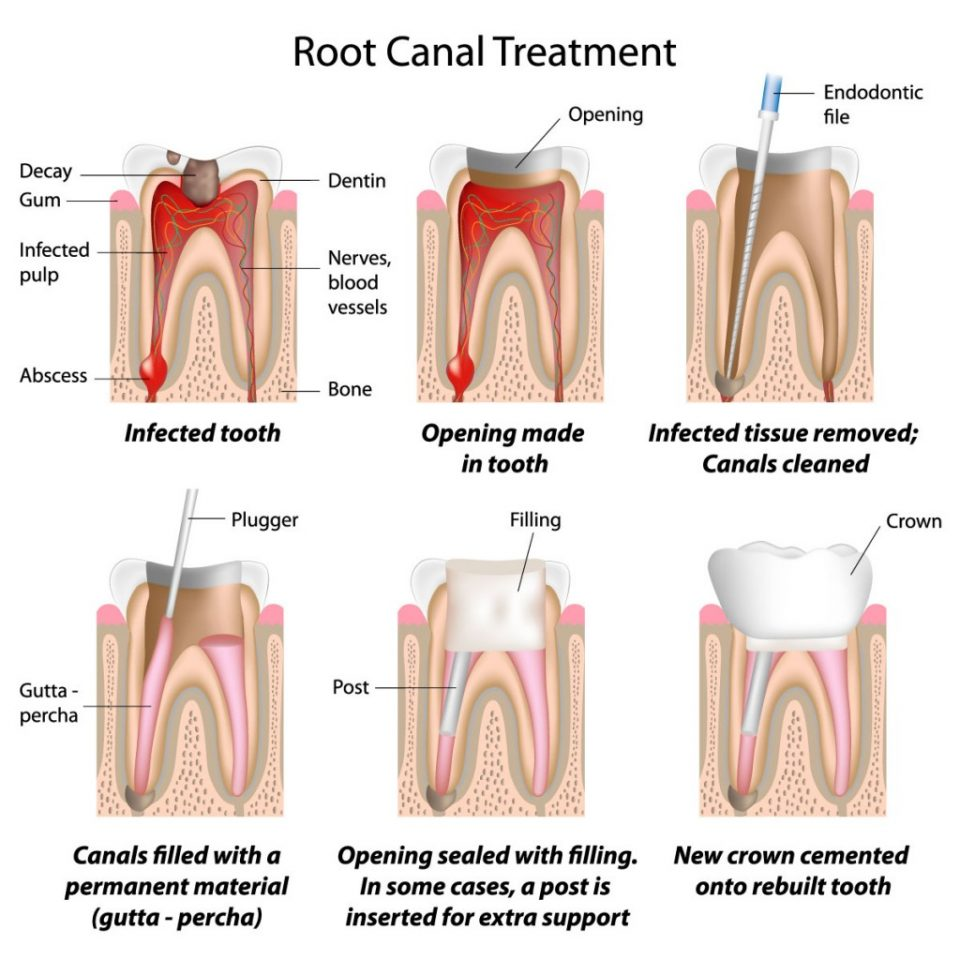 general-dentistry-root-canal-treatment-melbourne