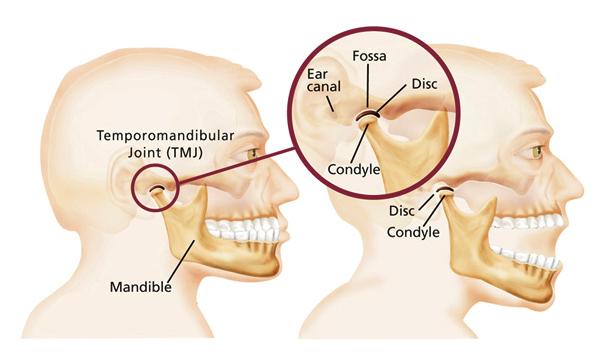 Richmond fine dentistry tmj tmj dysfunction temporomandibular joint dysfunction ccuart Gallery